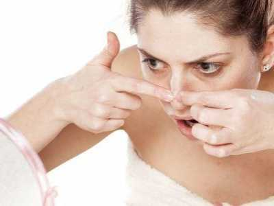 治疗酒糟鼻并不难 酒渣鼻治疗方法