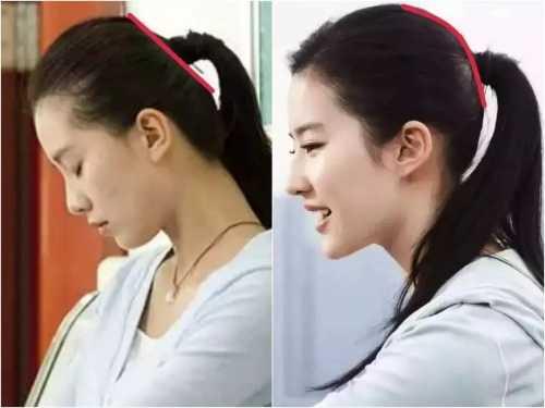 刘诗诗输给刘亦菲竟然是因为这个干瘪的部位 l刘亦菲