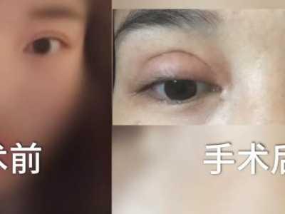 双眼皮割得比眼睛都大 医院和美容院做双眼皮