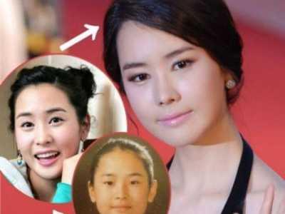 盘点韩国二次整容失败的一线女星 整容失败的韩国明星