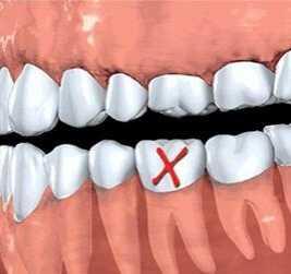 老年人牙齿掉了得赶紧补 有些牙不用补
