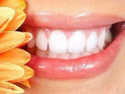 为什幺很多人都说美容冠会害人不浅呢 美容冠龅牙