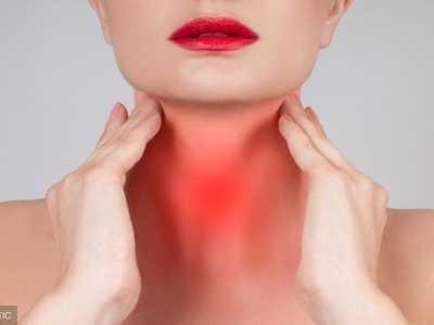 教你5个小偏方轻松治疗咽喉炎 治疗咽喉炎的偏方