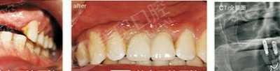 牙齿种植的过程 人工植牙过程