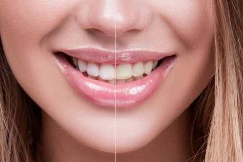 牙缝太大可以补吗 修补牙缝
