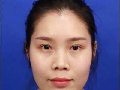 鼻综合和隆鼻真实案例分享 鼻综合真实恢复期图片