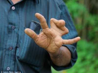 代代遗传拒绝手术称会惹怒天神带来厄运 蹼