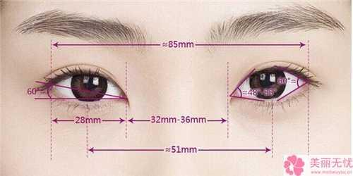 鼻整形选用注射伊维兰隆鼻的好处有哪些 伊维兰注射隆鼻效果
