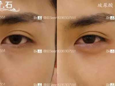 脸部哪些部位适合注射玻尿酸塑形 脸部脸颊在哪