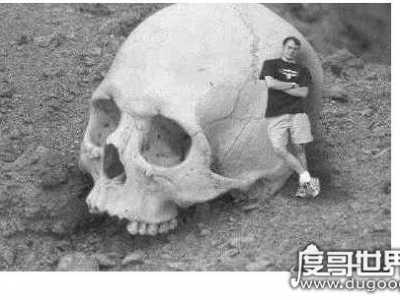 一个头骨就比人大 世界第一巨人
