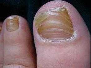 到底是什幺原因 脚趾甲变厚变黄