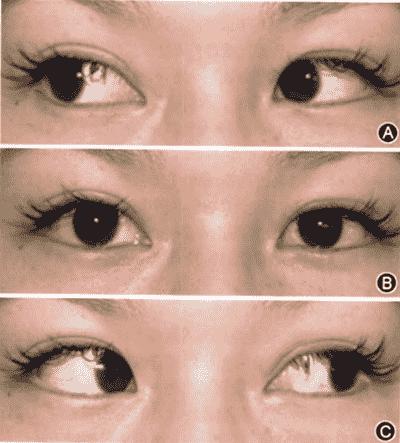 急性共同性内斜视二次手术复发一例 斜视手术复发