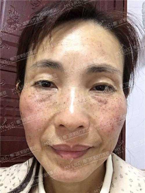 脸上点斑几天结痂图片 破皮祛斑图片