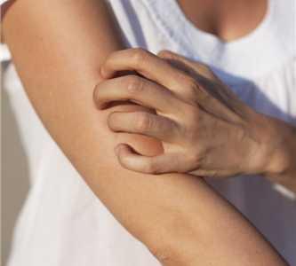 如何彻底治疗荨麻疹 荨麻疹能彻底治好吗